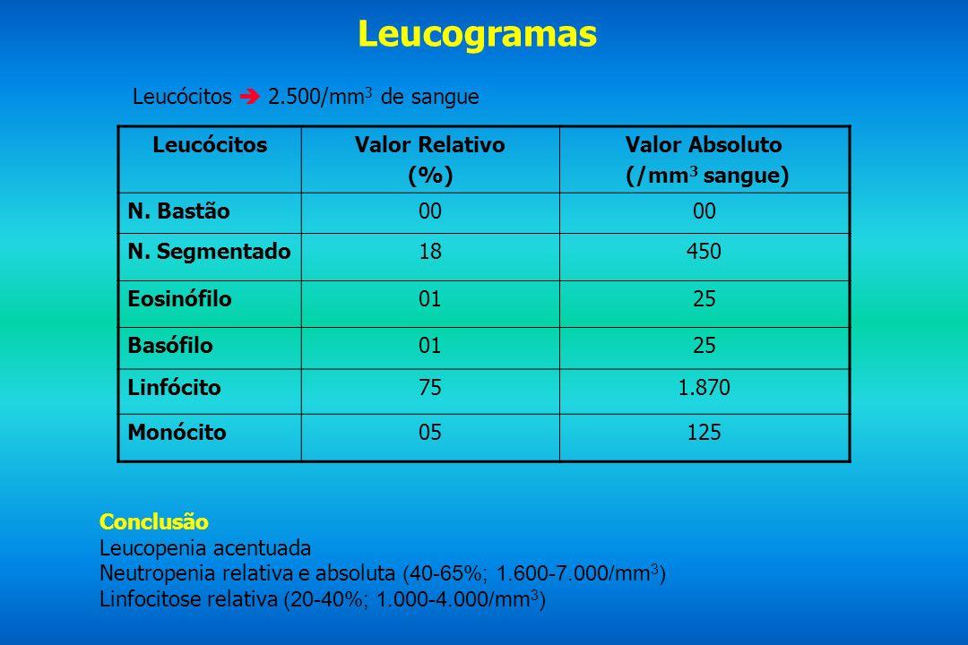 Leucogramas Leucócitos 2.500/mm 3 de sangue LeucócitosValor Relativo (%) Valor Absoluto (/mm 3 sangue) N. Bastão00 N. Segmentado18450 Eosinófilo0125 B