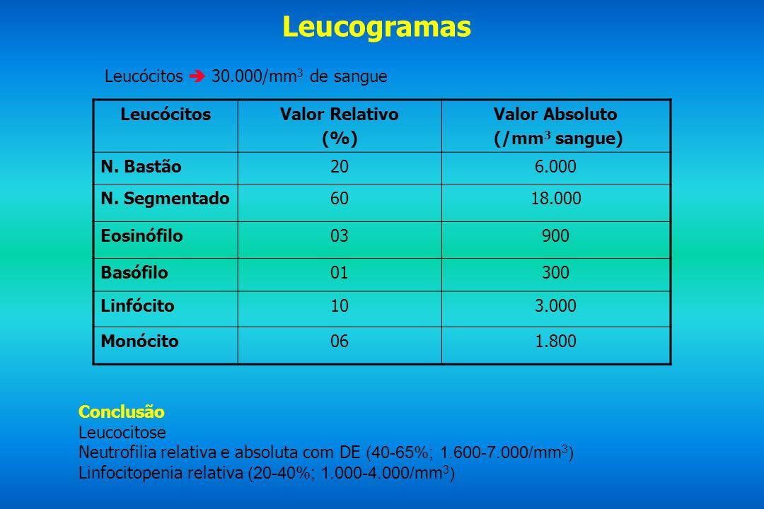 Leucogramas Leucócitos 30.000/mm 3 de sangue LeucócitosValor Relativo (%) Valor Absoluto (/mm 3 sangue) N. Bastão206.000 N. Segmentado6018.000 Eosinóf