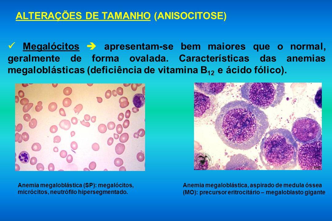 Megalócitos apresentam-se bem maiores que o normal, geralmente de forma ovalada. Características das anemias megaloblásticas (deficiência de vitamina