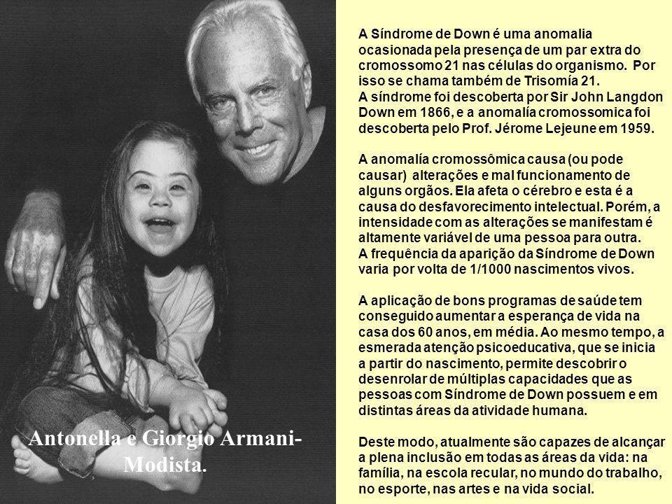 María e Laura Ponte-Modelo. Estas fotos, são uma mensagem universal que rompe barreiras, que pretende o bem das crianças, jovens e adultos com Síndrom