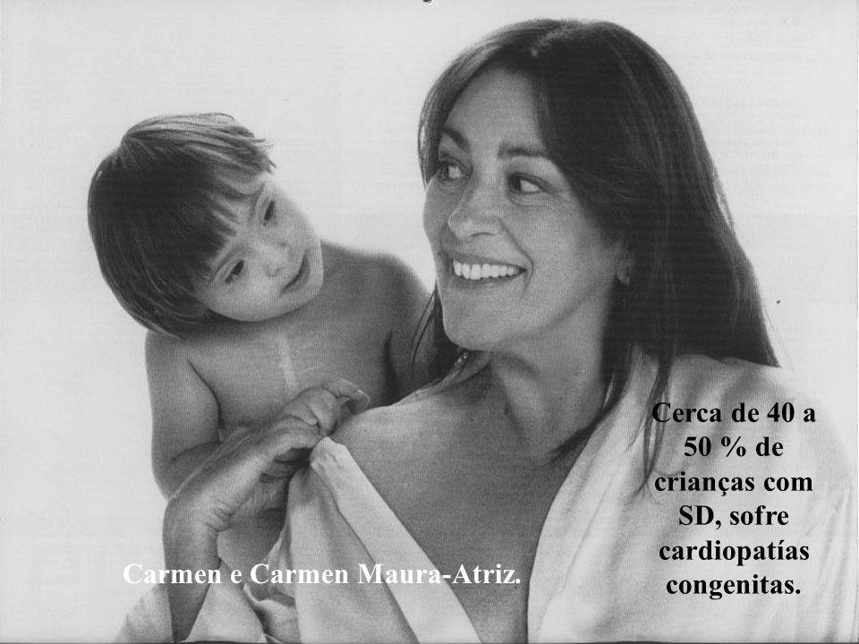 Carmen e Maura-Atriz. Cerca de 40 a 50 % de crianças com SD, sofre cardiopatías congenitas.