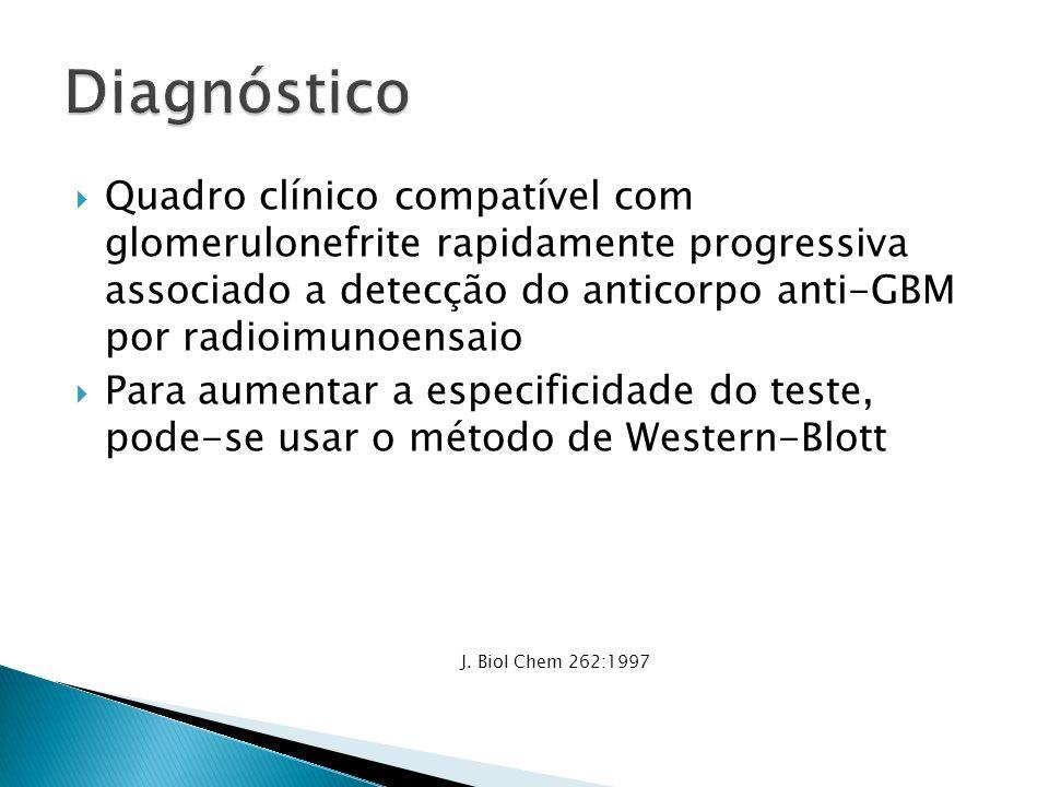 Quadro clínico compatível com glomerulonefrite rapidamente progressiva associado a detecção do anticorpo anti-GBM por radioimunoensaio Para aumentar a especificidade do teste, pode-se usar o método de Western-Blott J.