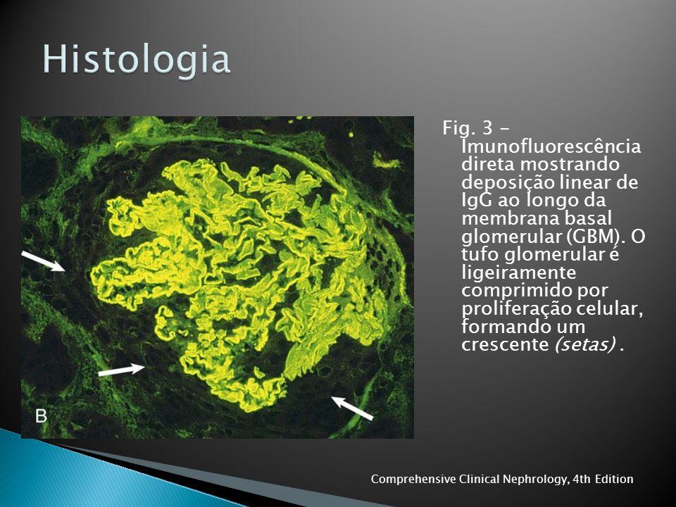 Fig. 3 - Imunofluorescência direta mostrando deposição linear de IgG ao longo da membrana basal glomerular (GBM). O tufo glomerular é ligeiramente com