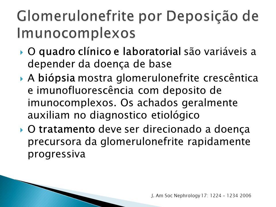 O quadro clínico e laboratorial são variáveis a depender da doença de base A biópsia mostra glomerulonefrite crescêntica e imunofluorescência com depo