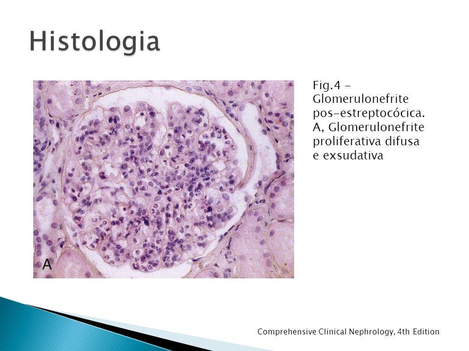 Fig.4 - Glomerulonefrite pos-estreptocócica.