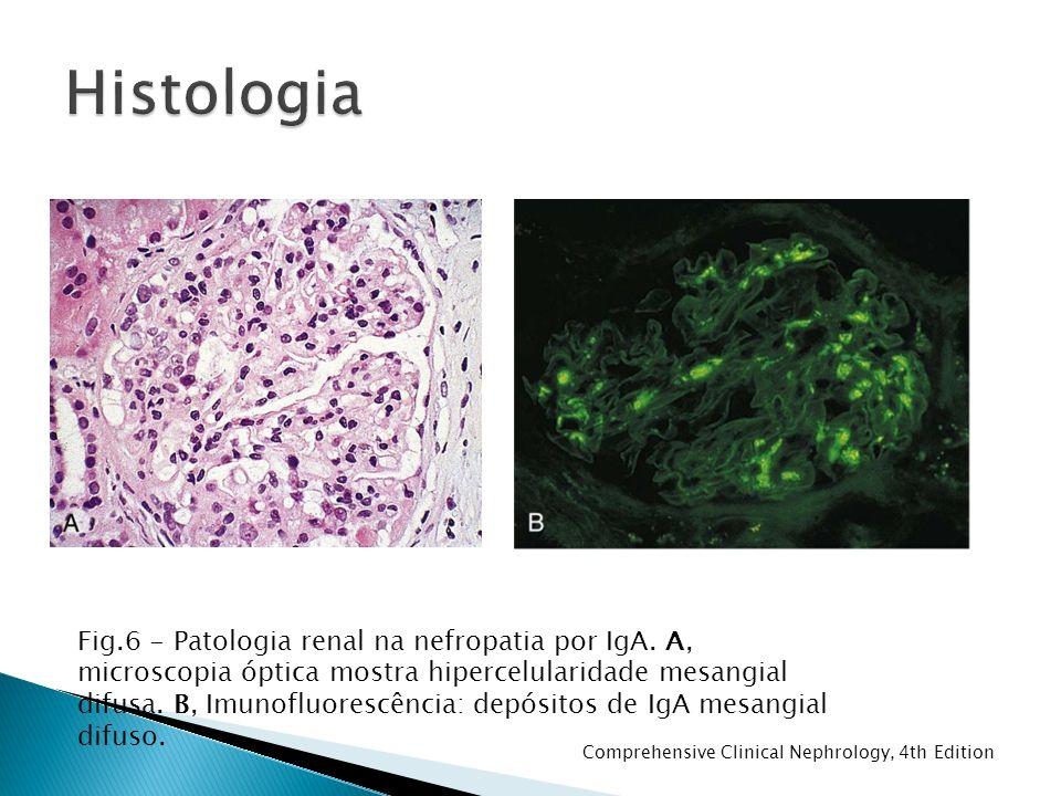 Fig.6 - Patologia renal na nefropatia por IgA. A, microscopia óptica mostra hipercelularidade mesangial difusa. B, Imunofluorescência: depósitos de Ig