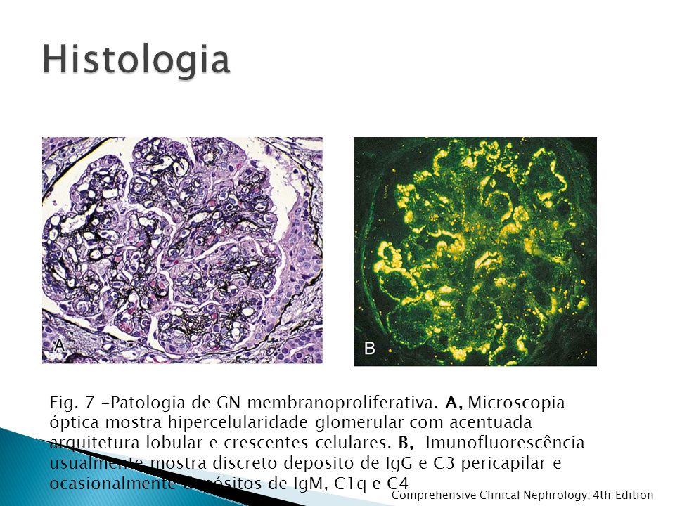 Fig. 7 -Patologia de GN membranoproliferativa. A, Microscopia óptica mostra hipercelularidade glomerular com acentuada arquitetura lobular e crescente