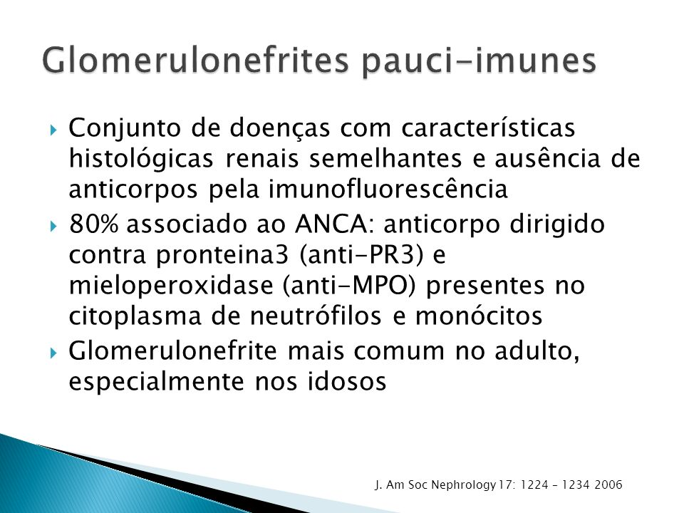Conjunto de doenças com características histológicas renais semelhantes e ausência de anticorpos pela imunofluorescência 80% associado ao ANCA: anticorpo dirigido contra pronteina3 (anti-PR3) e mieloperoxidase (anti-MPO) presentes no citoplasma de neutrófilos e monócitos Glomerulonefrite mais comum no adulto, especialmente nos idosos J.