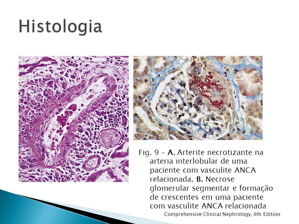 Fig. 9 – A. Arterite necrotizante na arteria interlobular de uma paciente com vasculite ANCA relacionada. B. Necrose glomerular segmentar e formação d