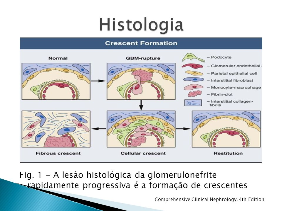 Fig. 1 - A lesão histológica da glomerulonefrite rapidamente progressiva é a formação de crescentes Comprehensive Clinical Nephrology, 4th Edition