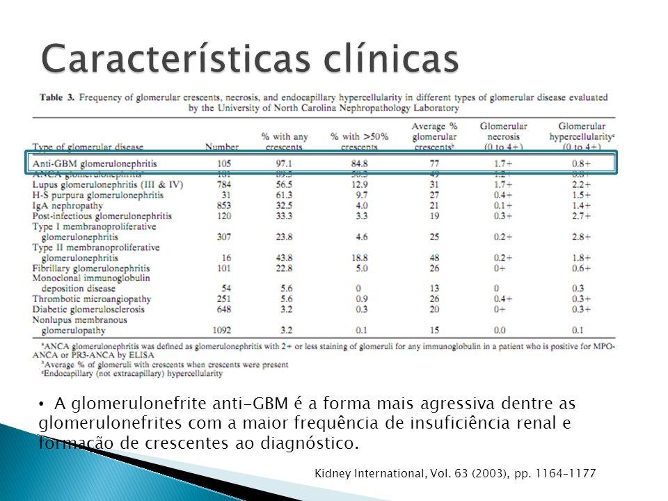A glomerulonefrite anti-GBM é a forma mais agressiva dentre as glomerulonefrites com a maior frequência de insuficiência renal e formação de crescentes ao diagnóstico.