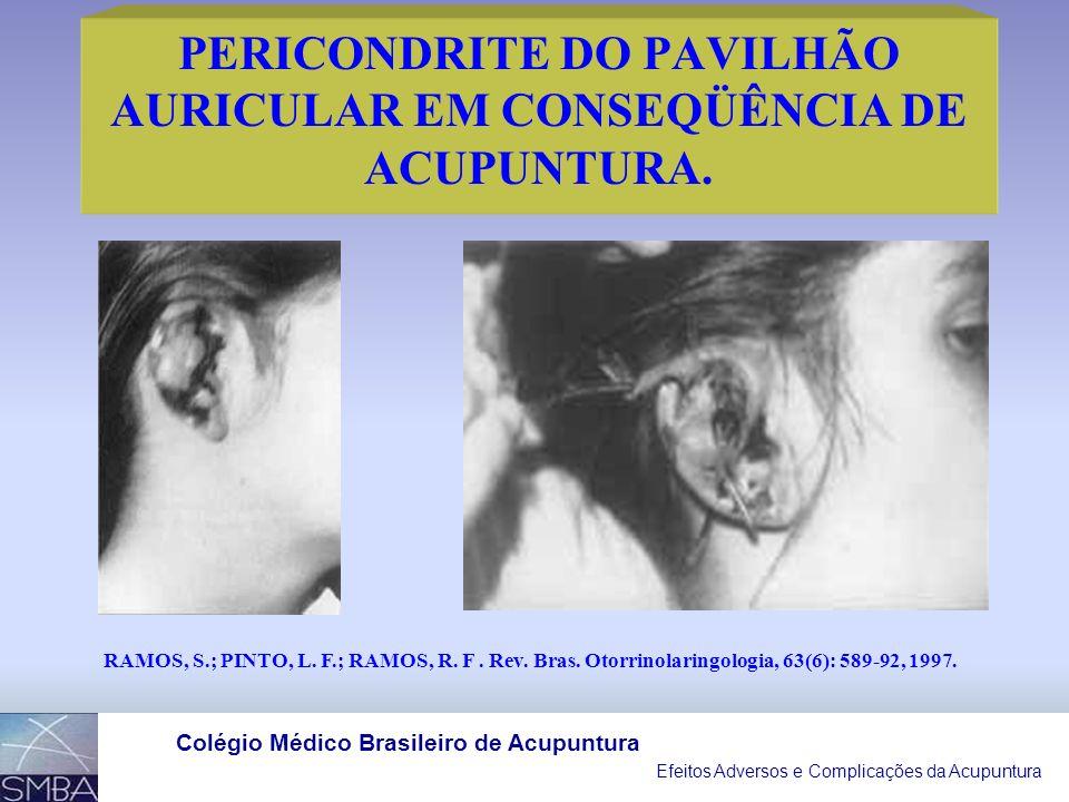Efeitos Adversos e Complicações da Acupuntura Colégio Médico Brasileiro de Acupuntura III- OUTROS EFEITOS ADVERSOS DA ACUPUNTURA: EFEITO ADVERSO NÚMER