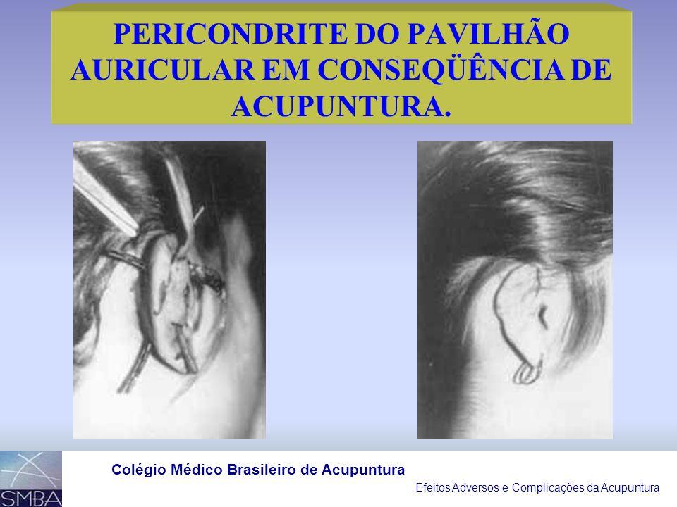 Efeitos Adversos e Complicações da Acupuntura Colégio Médico Brasileiro de Acupuntura PERICONDRITE DO PAVILHÃO AURICULAR EM CONSEQÜÊNCIA DE ACUPUNTURA