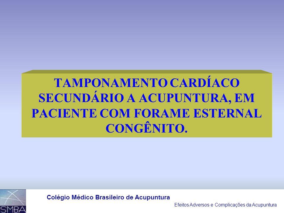 Efeitos Adversos e Complicações da Acupuntura Colégio Médico Brasileiro de Acupuntura Figure 2. A, Intraoperative transesophageal echocardiograms: mod
