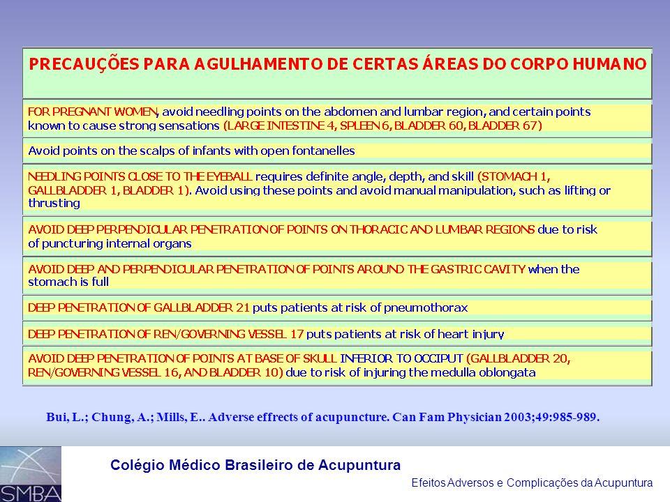 Efeitos Adversos e Complicações da Acupuntura Colégio Médico Brasileiro de Acupuntura II- LESÕES ANATÔMICAS INCIDENTES RELATADAS COMO EFEITOS ADVERSOS DA ACUPUNTURA: TIPOS DE LESÕES ANATÔMICAS NÚMERO DE CASOS PENUMOTÓRAX TOTAL: 30 UNILATERAL 23 BILATERAL 07 LESÕES NEUROLÓGICAS TOTAL: 35 SNC: LESÃO MEDULAR HEMATOMA EPID./HEMOR.SUBARACN.
