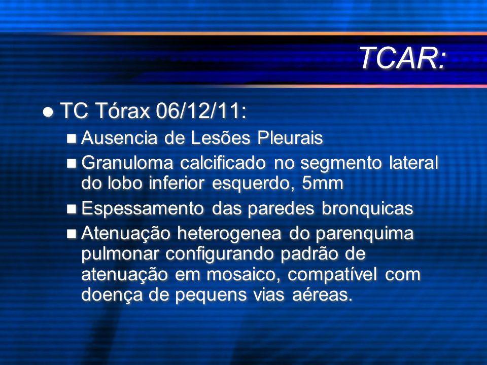 TC Tórax 06/12/11: Ausencia de Lesões Pleurais Granuloma calcificado no segmento lateral do lobo inferior esquerdo, 5mm Espessamento das paredes bronq