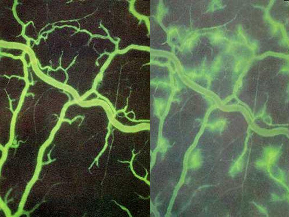Fisiologia / Fisiopatologia H 2 O + Na + R P O T E I N A Albumina 60.000 daltons 250.000 daltons