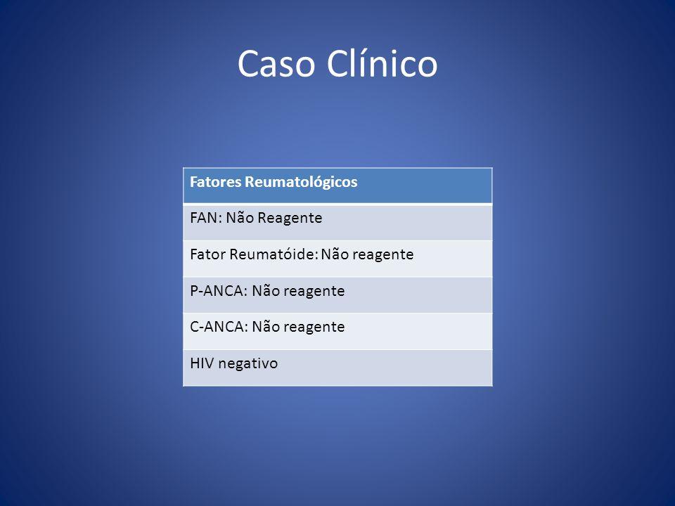 Caso Clínico Fatores Reumatológicos FAN: Não Reagente Fator Reumatóide: Não reagente P-ANCA: Não reagente C-ANCA: Não reagente HIV negativo