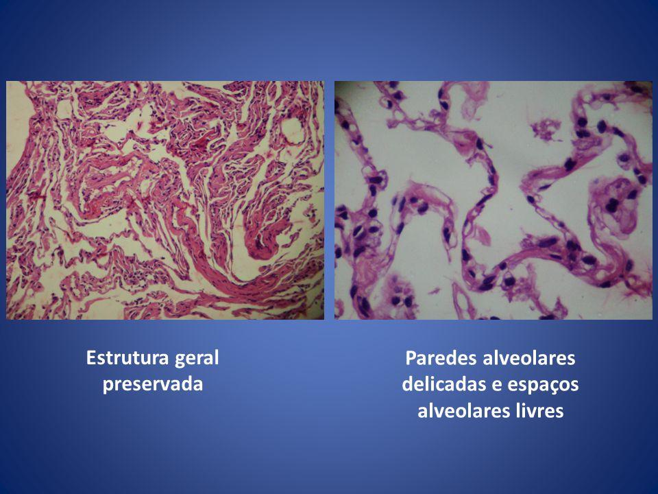 Estrutura geral preservada Paredes alveolares delicadas e espaços alveolares livres