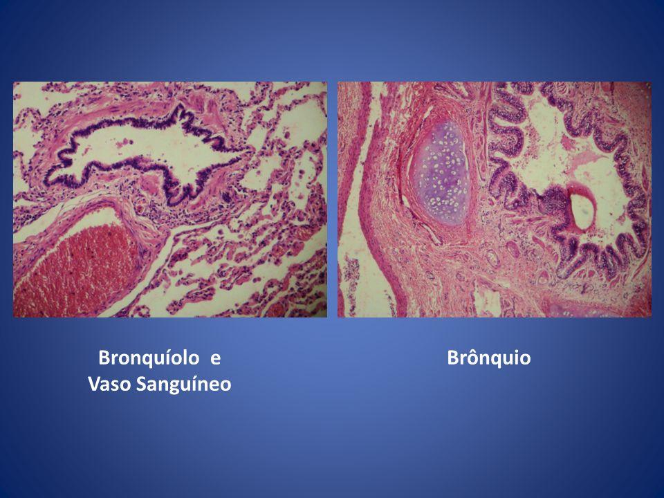 Bronquíolo e Vaso Sanguíneo Brônquio