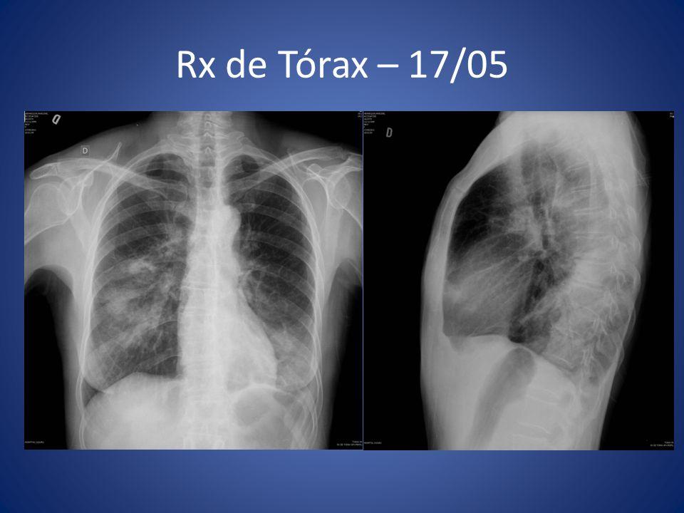 Rx de Tórax – 17/05