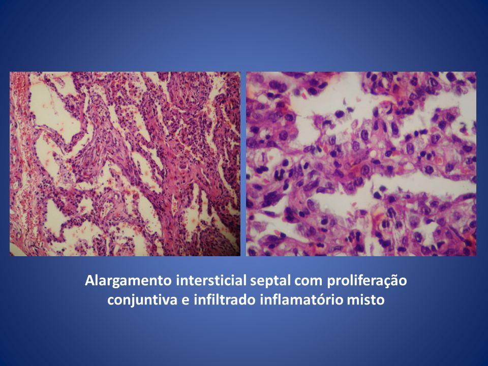 Alargamento intersticial septal com proliferação conjuntiva e infiltrado inflamatório misto