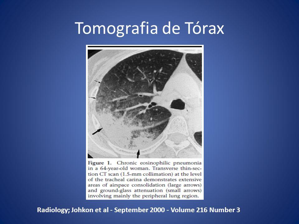 Tomografia de Tórax Radiology; Johkon et al - September 2000 - Volume 216 Number 3
