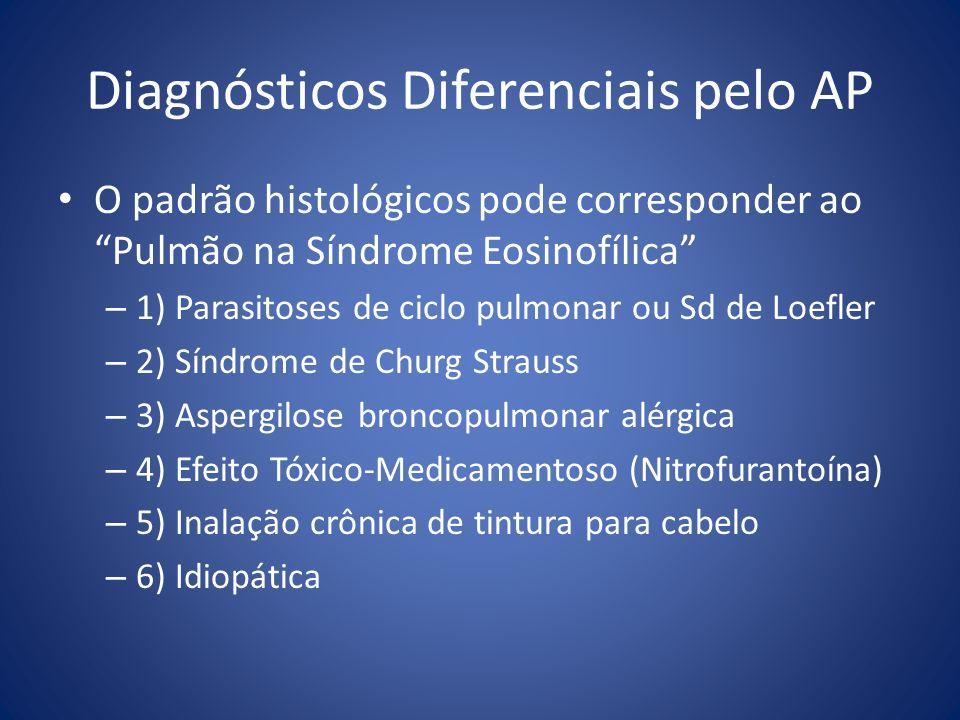 Diagnósticos Diferenciais pelo AP O padrão histológicos pode corresponder aoPulmão na Síndrome Eosinofílica – 1) Parasitoses de ciclo pulmonar ou Sd d