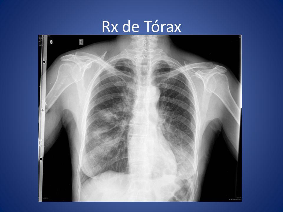 Biópsia a céu aberto (20/05/11) Segmentectomia pulmonar Videoassistida – LID e LM Parênquima pulmonar com áreas hipoaeradas, espessamento fibroso septal interlobular