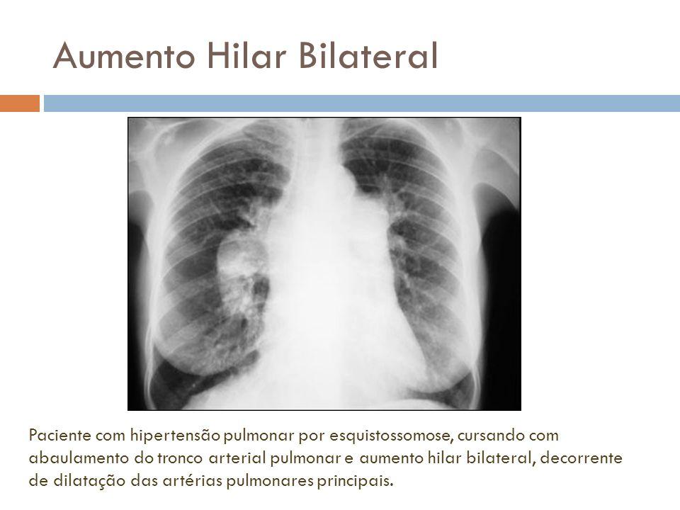Aumento Hilar Bilateral Paciente com hipertensão pulmonar por esquistossomose, cursando com abaulamento do tronco arterial pulmonar e aumento hilar bi