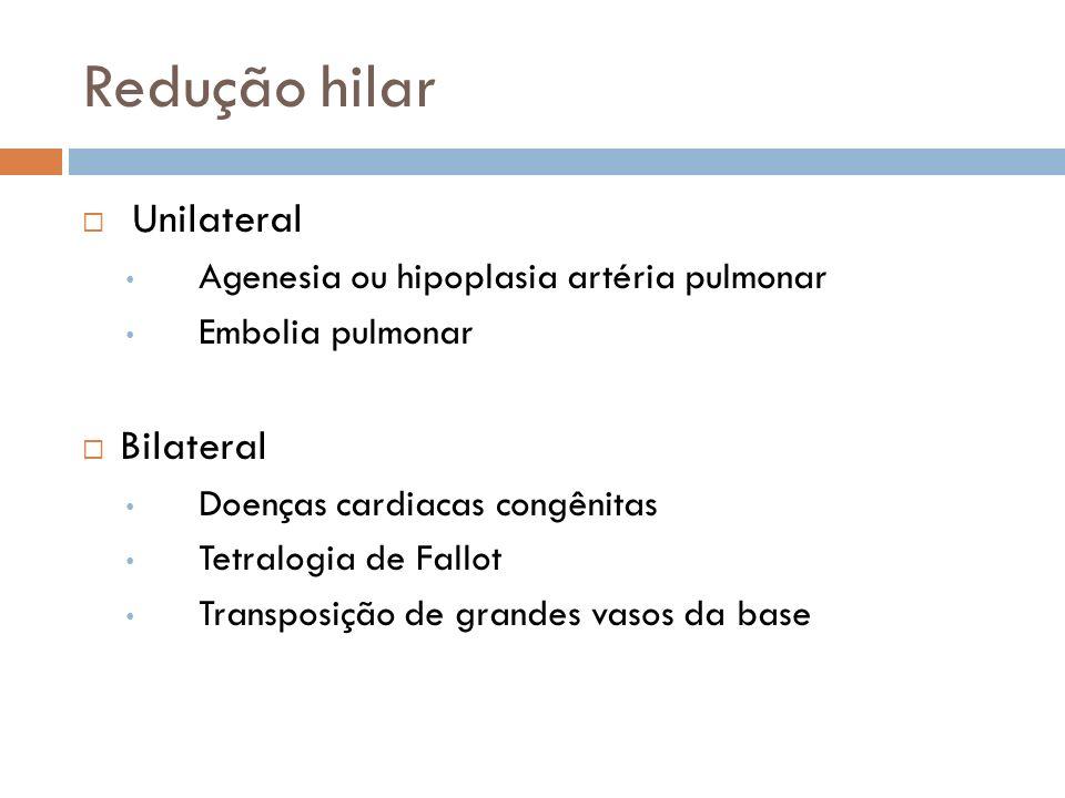 Redução hilar Unilateral Agenesia ou hipoplasia artéria pulmonar Embolia pulmonar Bilateral Doenças cardiacas congênitas Tetralogia de Fallot Transpos