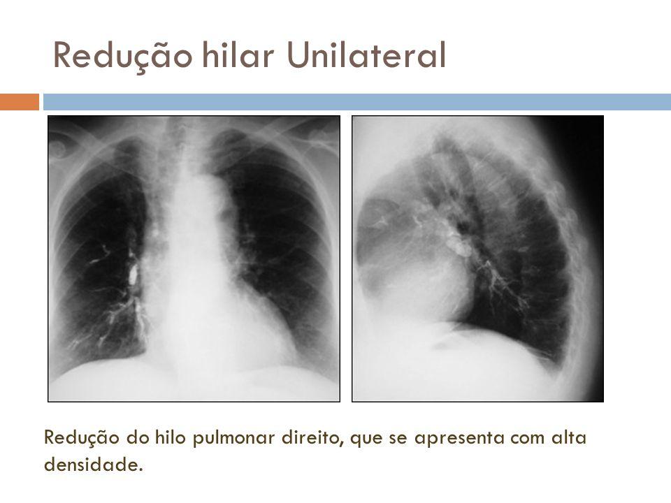 Redução hilar Unilateral Redução do hilo pulmonar direito, que se apresenta com alta densidade.