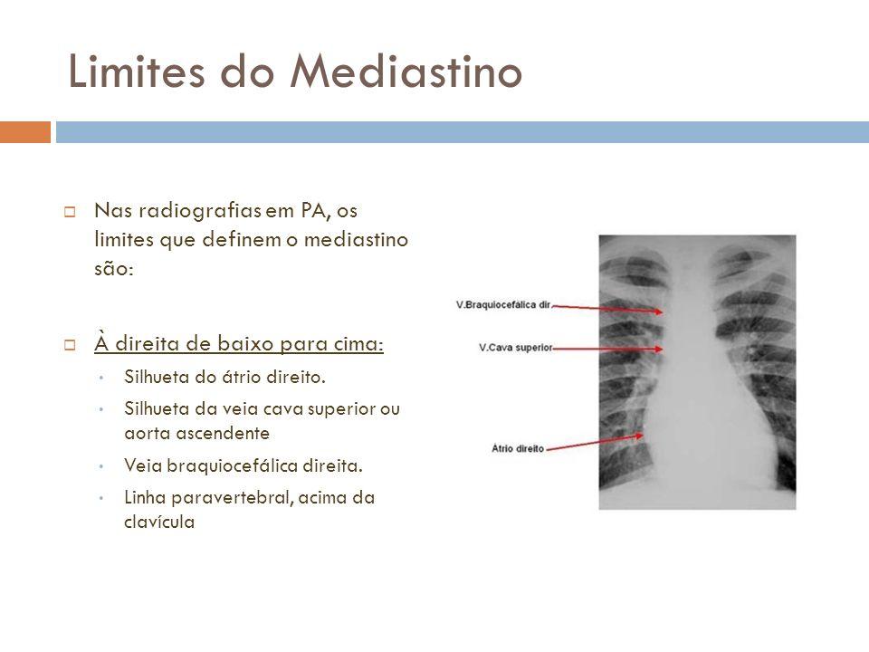 Limites do Mediastino Nas radiografias em PA, os limites que definem o mediastino são: À direita de baixo para cima: Silhueta do átrio direito. Silhue