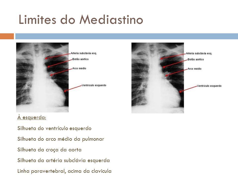 Limites do Mediastino À esquerda: Silhueta do ventrículo esquerdo Silhueta do arco médio da pulmonar Silhueta da croça da aorta Silhueta da artéria su