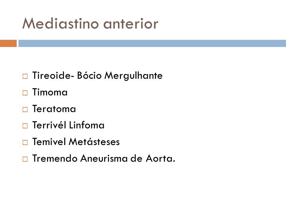 Mediastino anterior Tireoide- Bócio Mergulhante Timoma Teratoma Terrivél Linfoma Temivel Metásteses Tremendo Aneurisma de Aorta.