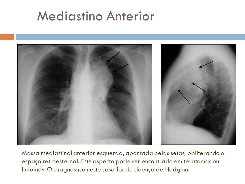 Mediastino Anterior Massa mediastinal anterior esquerda, apontada pelas setas, obliterando o espaço retroesternal. Este aspecto pode ser encontrado em