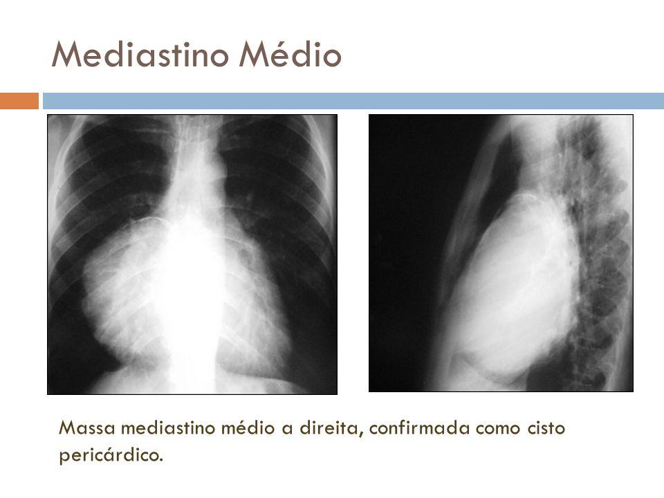 Mediastino Médio Massa mediastino médio a direita, confirmada como cisto pericárdico.