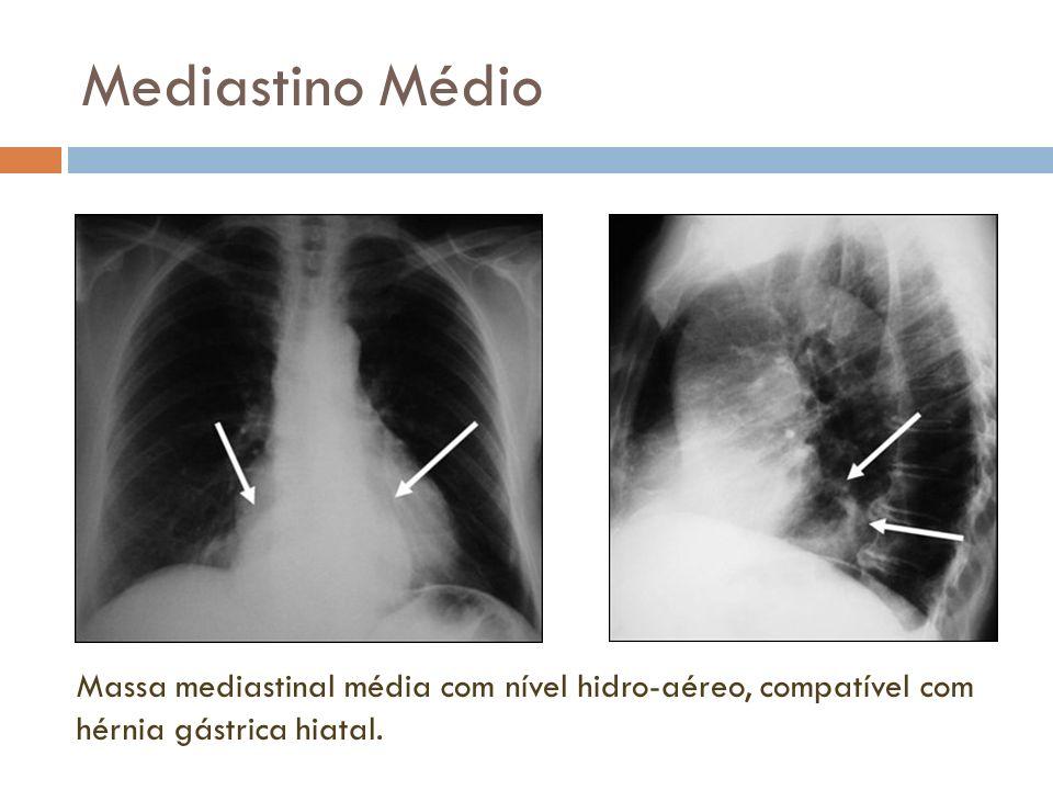 Mediastino Médio Massa mediastinal média com nível hidro-aéreo, compatível com hérnia gástrica hiatal.