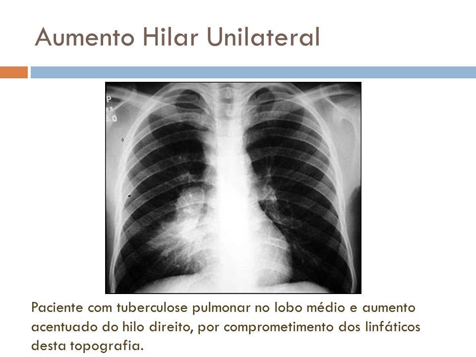 Aumento hilar unilateral Massa periférica no pulmão direito associada a aumento do tamanho e da densidade do hilo ipsilateral.