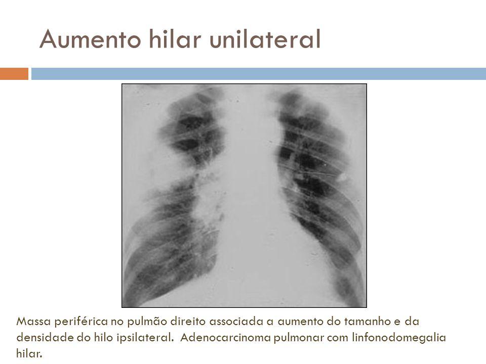 Aumento hilar unilateral Massa periférica no pulmão direito associada a aumento do tamanho e da densidade do hilo ipsilateral. Adenocarcinoma pulmonar
