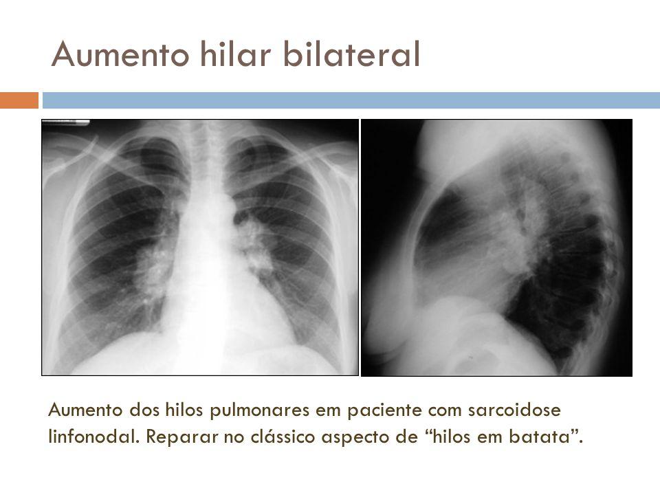 Aumento hilar bilateral Aumento dos hilos pulmonares em paciente com sarcoidose linfonodal. Reparar no clássico aspecto de hilos em batata.