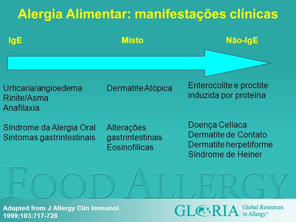 Alergia Alimentar: manifestações clínicas IgEMisto Não-IgE Urticaria/angioedema Rinite/Asma Anafilaxia Síndrome da Alergia Oral Sintomas gastrintestin