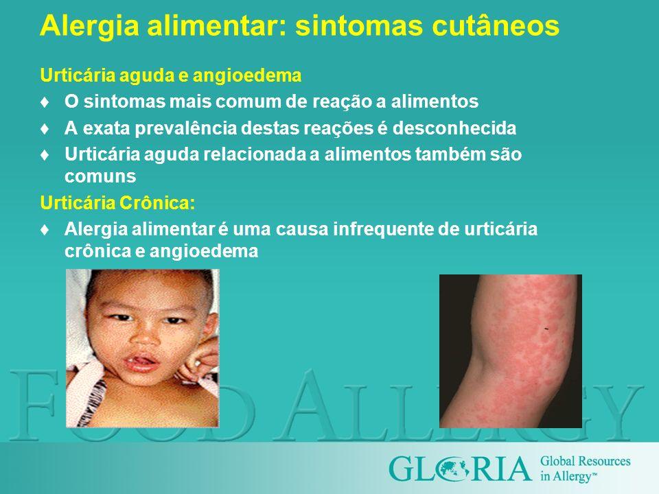 Urticária aguda e angioedema O sintomas mais comum de reação a alimentos A exata prevalência destas reações é desconhecida Urticária aguda relacionada