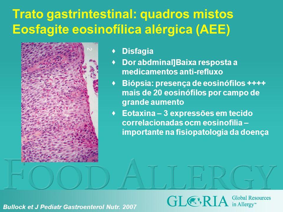 Disfagia Dor abdminal]Baixa resposta a medicamentos anti-refluxo Biópsia: presença de eosinófilos ++++ mais de 20 eosinófilos por campo de grande aume