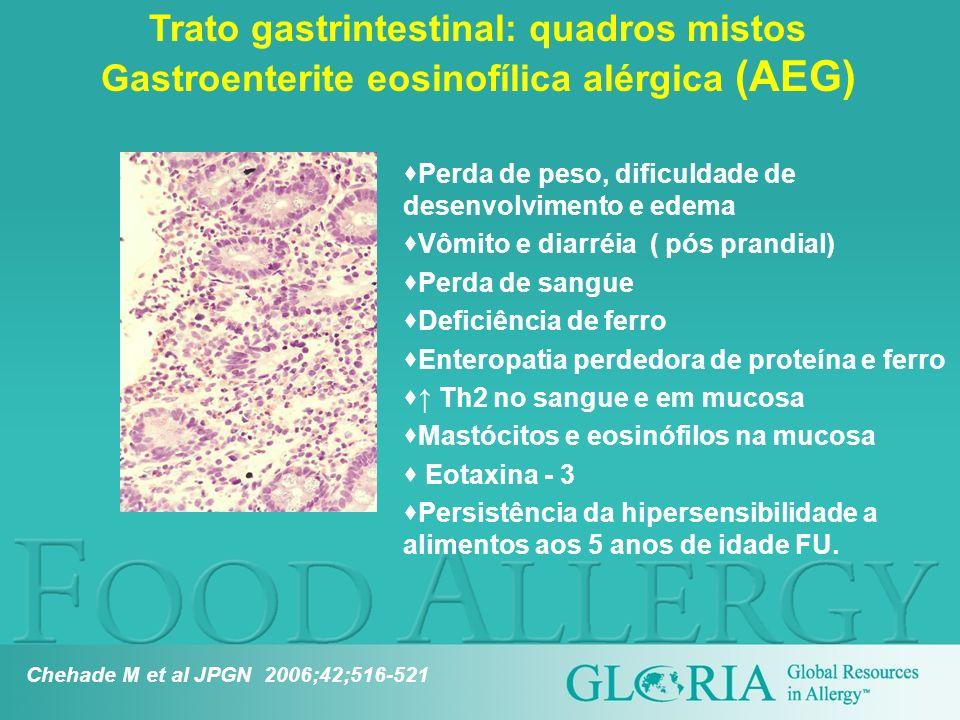 Perda de peso, dificuldade de desenvolvimento e edema Vômito e diarréia ( pós prandial) Perda de sangue Deficiência de ferro Enteropatia perdedora de