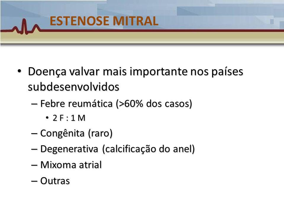 ESTENOSE MITRAL - Classificação PAP (mmHg) Gradiente médio(mm Hg) Área valvar (cm 2 ) Leve < 30 < 5 > 1.5 Moderada 30 – 50 5 – 10 1 – 1.5 Grave > 50 > 10 < 1