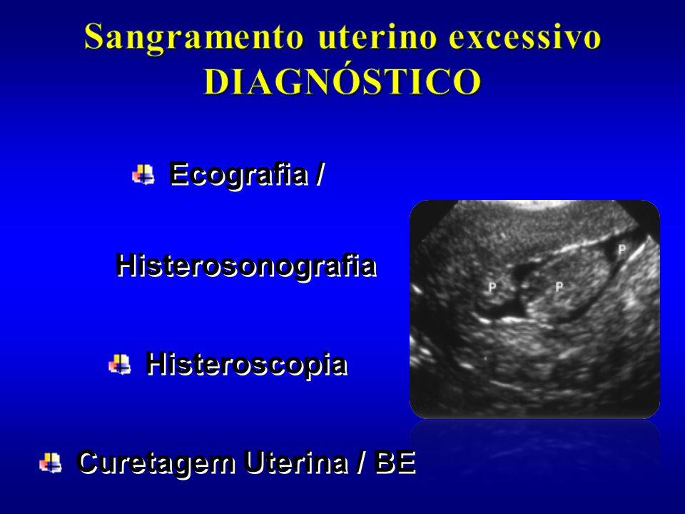 Ecografia / Histerosonografia Histeroscopia Curetagem Uterina / BE Ecografia / Histerosonografia Histeroscopia Curetagem Uterina / BE