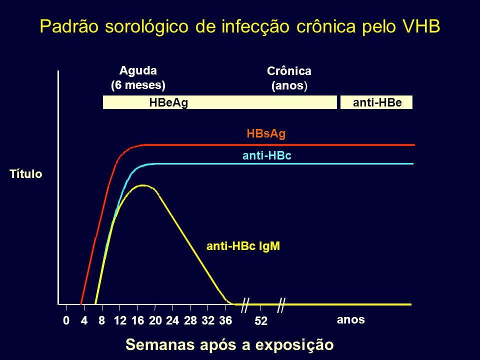 anti-HBc IgM anti-HBc HBsAg 048 12 16202428 32 36 52 anos Padrão sorológico de infecção crônica pelo VHB Título Semanas após a exposição Aguda (6 mese