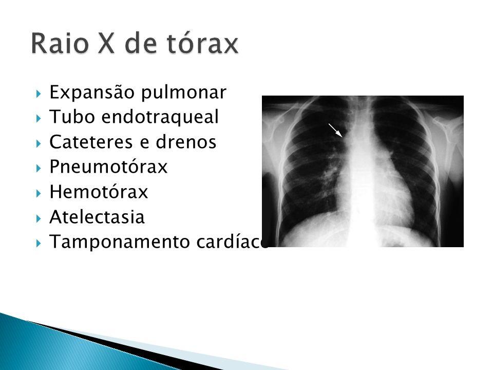 Expansão pulmonar Tubo endotraqueal Cateteres e drenos Pneumotórax Hemotórax Atelectasia Tamponamento cardíaco