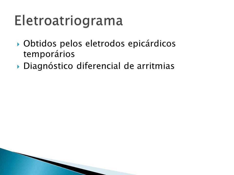 Obtidos pelos eletrodos epicárdicos temporários Diagnóstico diferencial de arritmias